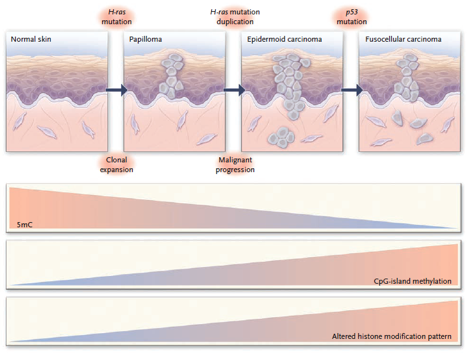 A multistage model of carcinogenesis in skin is shown. In conjunction with phenotypic cellular changes and the accumulation of genetic defects, there is a progressive loss of total DNA methylation content, an increased frequency of hypermethylated CpG islands, and an increased histone-modification imbalance in the development of the disease. H-ras denotes Harvey–ras oncogene, and 5mC 5-methylcytosine.  Source: N Engl J Med 2008;358:1148-59. Copyright © 2008 Massachusetts Medical Society