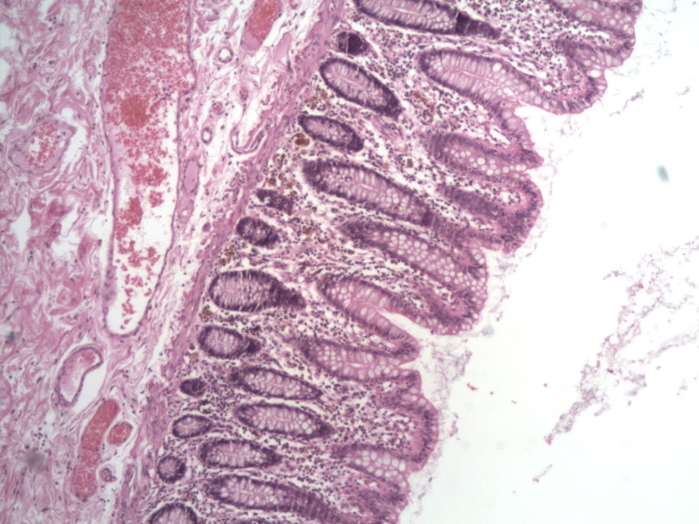 colonic-mucosa